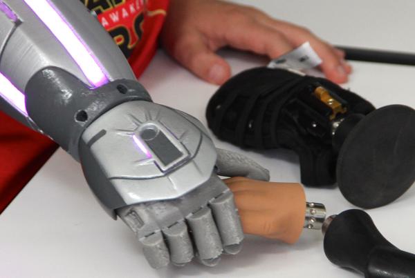 Prothèses bioniques par Open Bionics