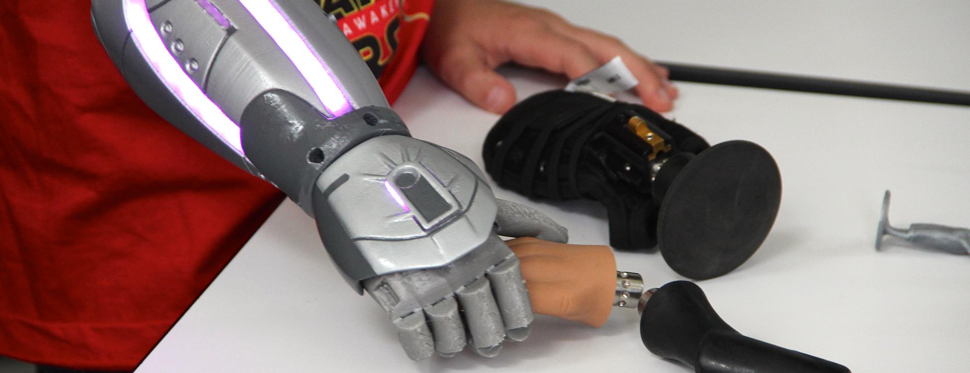Des prothèses bioniques offertes à 10 enfants britanniques